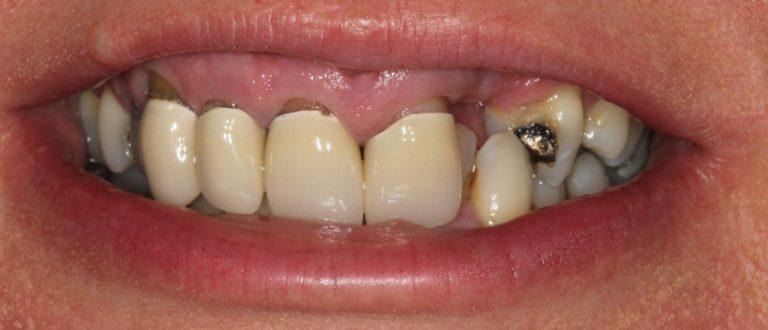 swanscombe dentist smile makeover