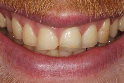 steve-before-dental-bonding